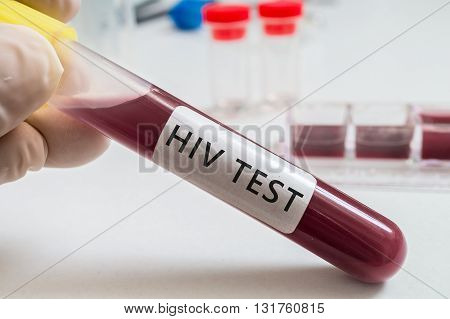 Hiv Test - Test Tube With Blood In Laboratory.