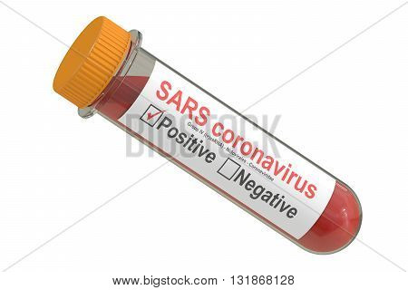 Test tube with blood sample positive SARS coronavirus 3D rendering