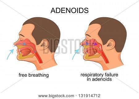 illustration of the growth of adenoids adenoids breathing problems