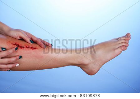 Injured leg with blood on blue background
