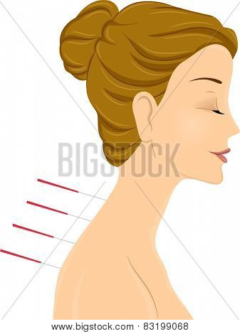 Illustration of a Woman Getting an Acupuncture Treatment