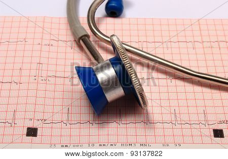 Stethoscope With Electrocardiogram Graph Report