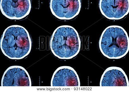 Ct Scan Of Brain With Red Area ( Imaging For Hemorrhagic Stroke Or Ischemic Stroke ( Infarction )