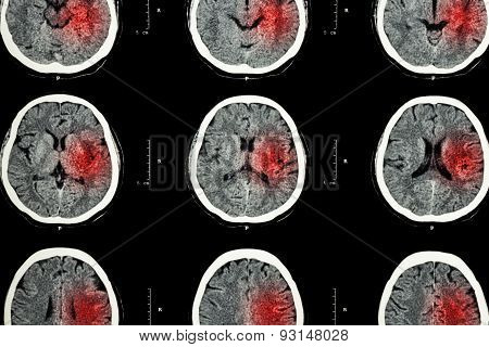 Ct Scan Of Brain With Red Area