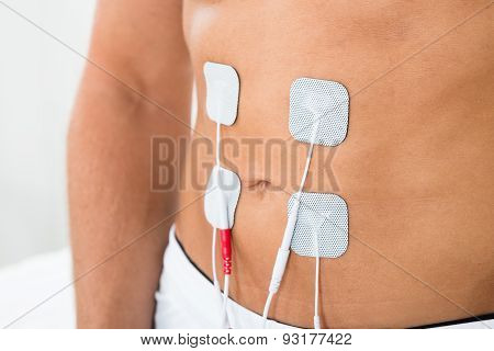 Man With Electrodes On Stomach