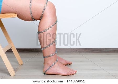 Chain on woman leg pain, injured leg