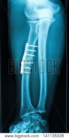 X-Ray of broken tibia with screw fixation surgery (intramedullary nail)