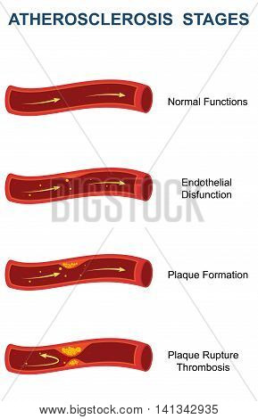 Detailed diagram of different stages of Atherosclerosis