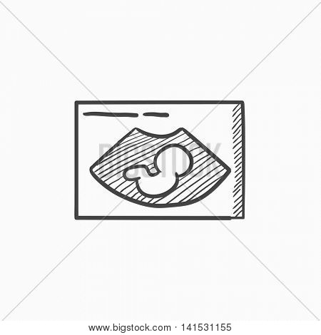 Fetal ultrasound vector sketch icon isolated on background. Hand drawn Fetal ultrasound icon. Fetal ultrasound sketch icon for infographic, website or app.