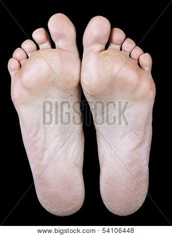 Foot Of An Woman With Calluses