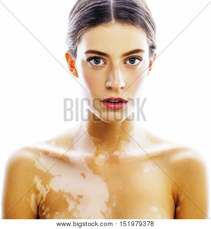 young pretty brunette real modern woman with vitiligo desease close up isolated on white, bed tan after summer vacations, lifestyle modern people concept
