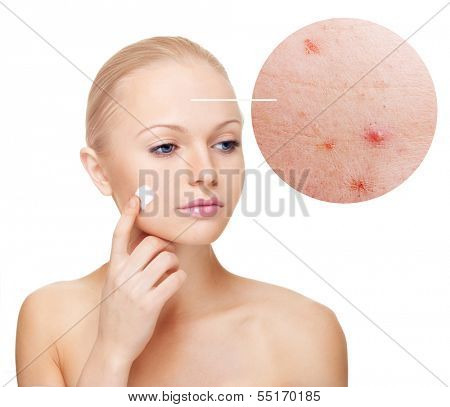 Woman applying moisturize cream.