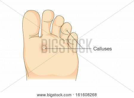 Small circles dead skin on the bottom of soles and toes. Calluses. Illustration about symptoms and pain on foot.