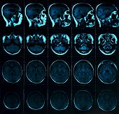 Magnetic Resonance Scan Of The Brain With Skull. Mri Head Scan On Dark Background Blue Color. X-ray  poster