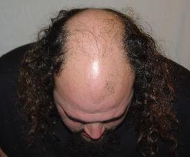 image of bald headed  - bald - JPG