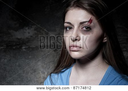 Beaten Up Woman.