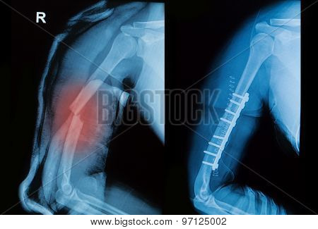 X-ray Image Of Borken Arm Bone Show Pre- Post Operation
