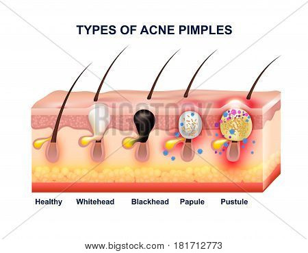 Colored Skin Acne Anatomy Composition With Types Of Acne Pimples