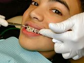 stock photo of overbite  - fitting of braces on teenager - JPG