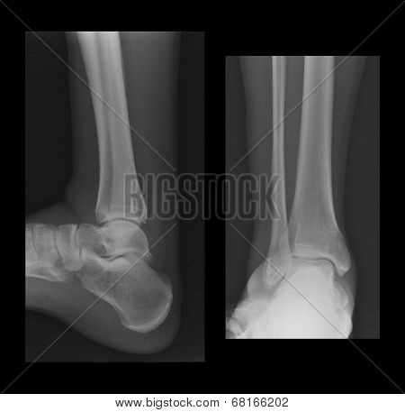Ankle Radiographs