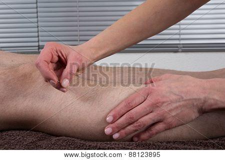 Man Undergoing Acupuncture Treatment- Gall Bladder