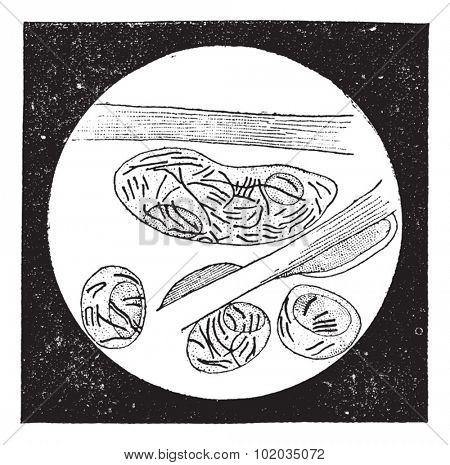 Mycobacterium leprae, vintage engraved illustration. Dictionary of Words and Things - Larive and Fleury - 1895
