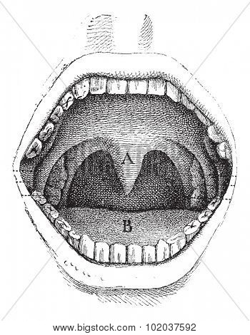 Illustration of the inside of a human mouth, vintage engraved illustration. Usual Medicine Dictionary by Dr Labarthe - 1885.