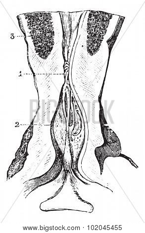 Narrowing of the membranous area of the urethra with dilatation of the prostate area, vintage engraved illustration. Usual Medicine Dictionary by Dr Labarthe - 1885.