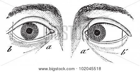 Esotropia of the left eye, vintage engraved illustration. Usual Medicine Dictionary by Dr Labarthe - 1885.