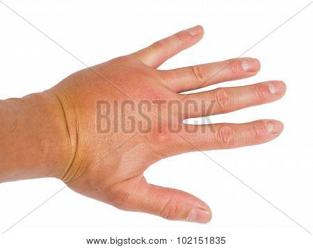 Male Person Showing Swollen Knuckles On Left Hand Isolated On White