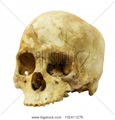 Human Skull Fracture(side) (mongoloid,asian) On Isolated Background