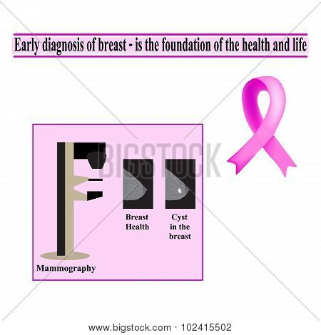 Mammography. Diagnosis of breast cancer. Diagnosis of cysts in the breast. The fight against breast