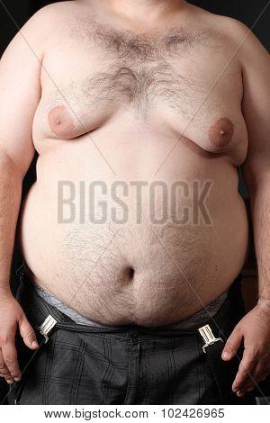 obesity disease