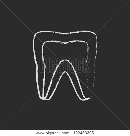 Molar tooth hand drawn in chalk on a blackboard vector white icon isolated on a black background.