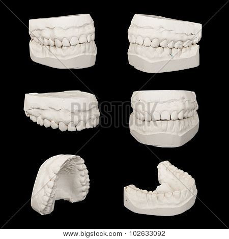 Set of Dental casting gypsum models plaster cast stomatologic hu