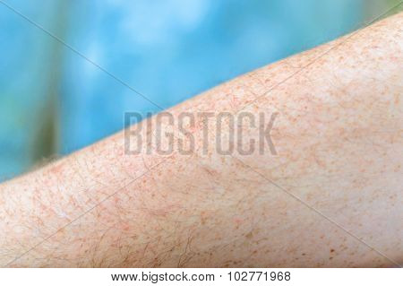 Artistic Selective Focus Of An Arm With Freckles