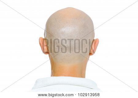 Bald Man. Nape. Studio. Isolated