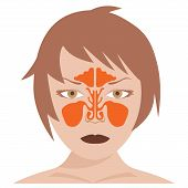 Постер, плакат: frontal and nasal sinus