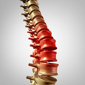 pic of vertebrates  - Spine pain and lower back disease and human backache with a three dimensional spinal body skeleton showing the vertebra and vertebral column in glowing red highlight as a medical health care concept for joint pain - JPG