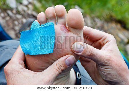 Foot Blister