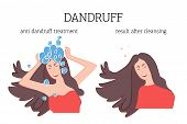 The Girl Washes Her Head With A Therapeutic Shampoo For Dandruff And The Result Of Treatment After.  poster