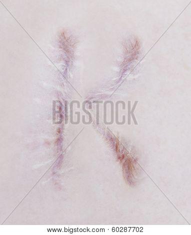 Scar Letter K On Human Skin