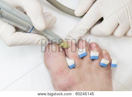 process of pedicure