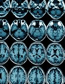 picture of mri  - MRI scan image of brain for diagnosis - JPG