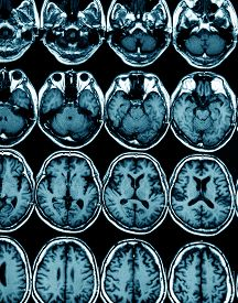 image of magnetic resonance imaging  - MRI scan image of brain for diagnosis - JPG