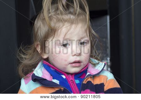 Little Girl With Rash On His Face