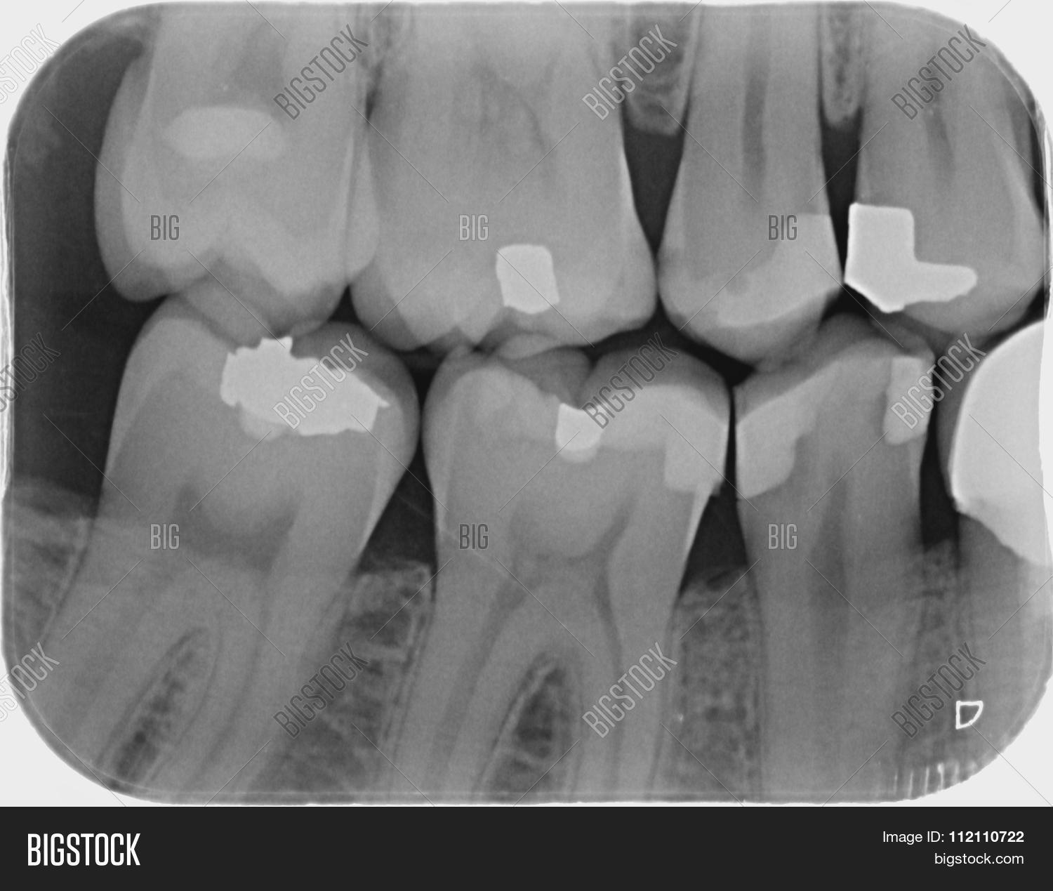 Dental X Ray For Check Caries Teeth Bad Condition