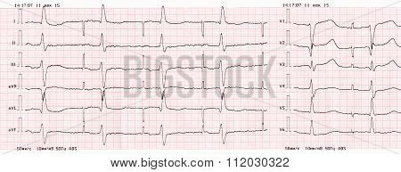 Tape Ecg With Pacemaker Rhythm (atrial Pacing)