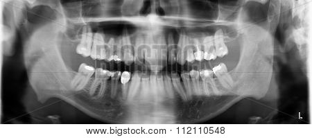 Dental x-ray  for check dental caries Panoramic radiopaque Panorama photo - male teeth