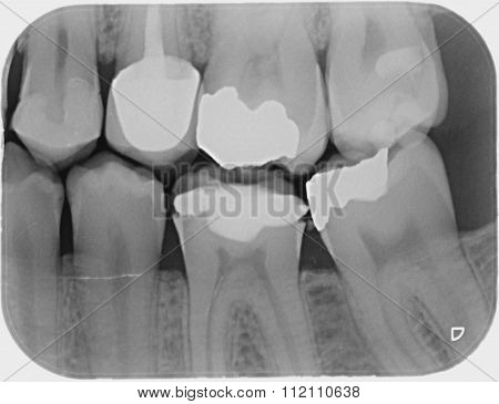 Dental x-ray  for check dental caries teeth bad condition